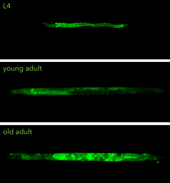 NemaMetrix Introduces Fluorescent Staining Kits for Improved Phenotyping in model organism <i>C. elegans</i>