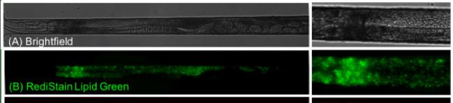 lipid storage analysis using C. elegans