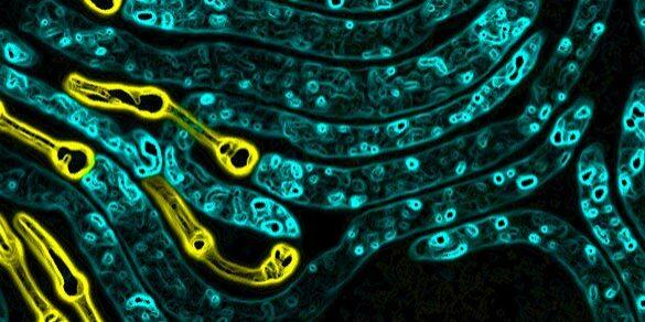 C. elegans Expression
